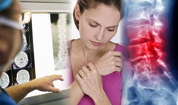 bone osteoarthritis